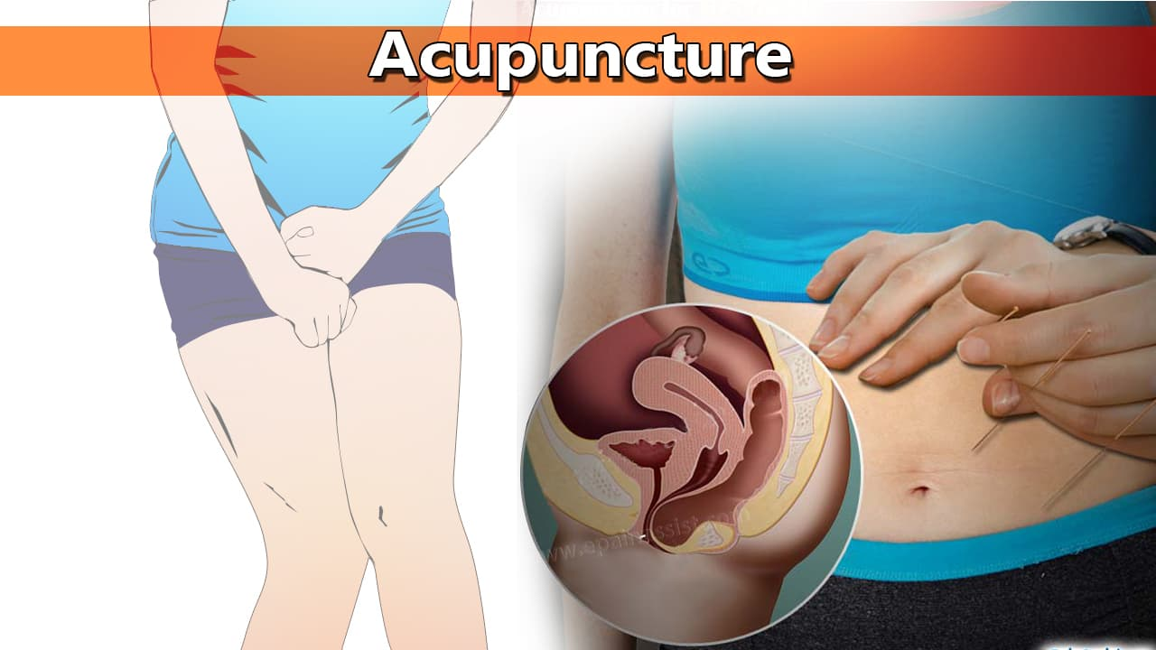 Acupuncture to Treat Frequent Urination in Women