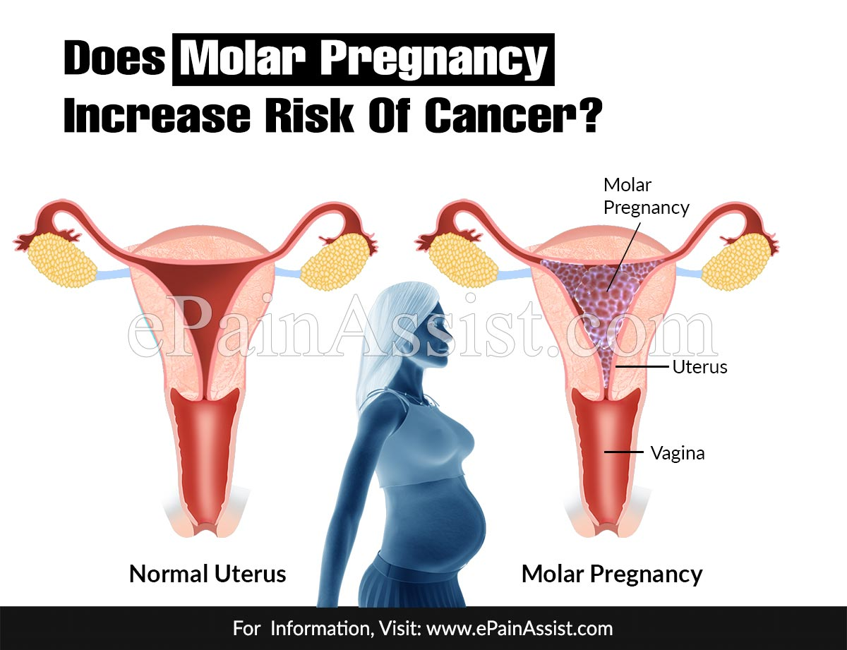 Does Molar Pregnancy Increase Risk Of Cancer?