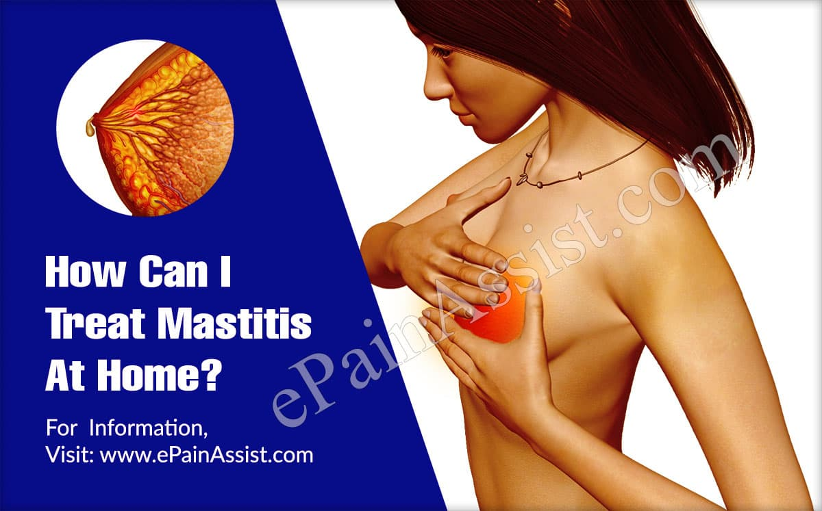How Can I Treat Mastitis At Home?