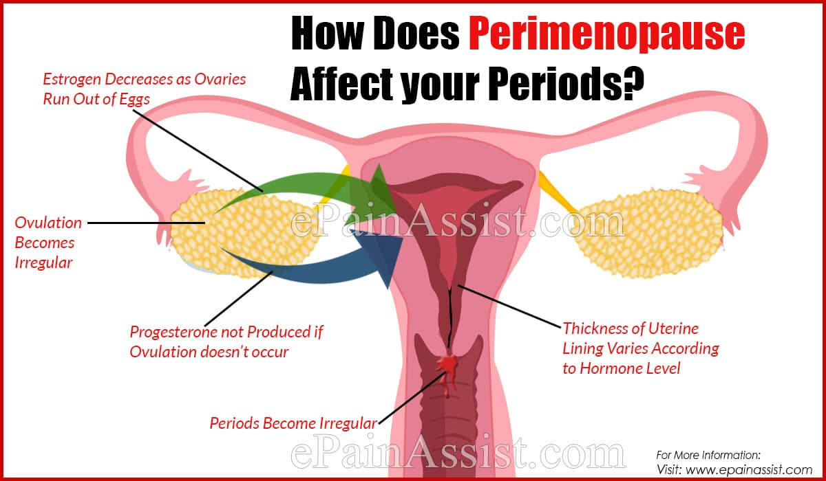How Does Perimenopause Affect your Periods?