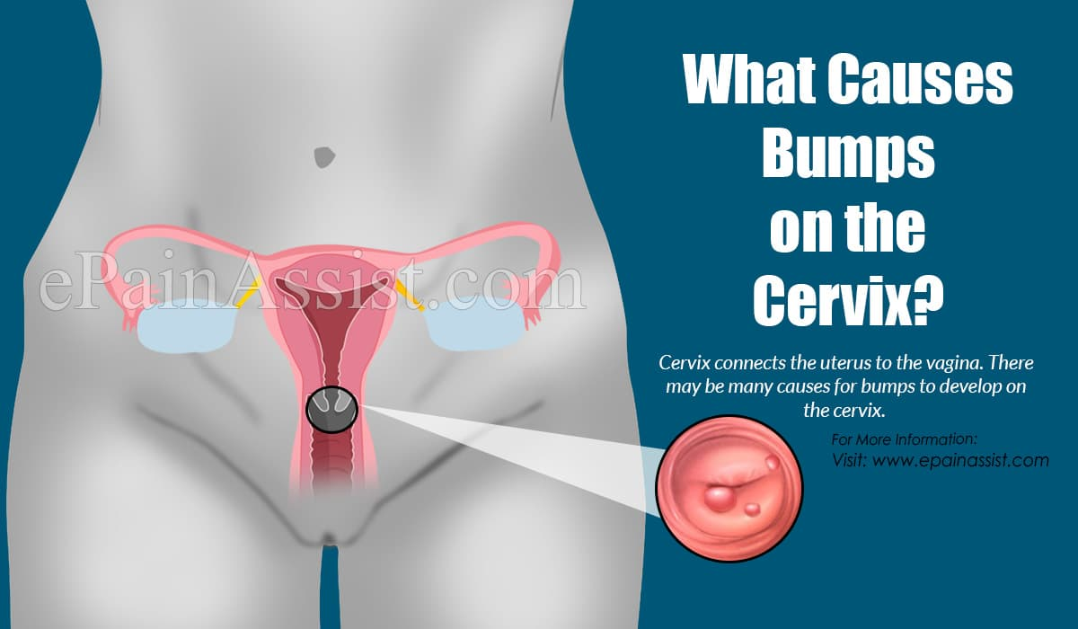 What Causes Bumps on the Cervix?