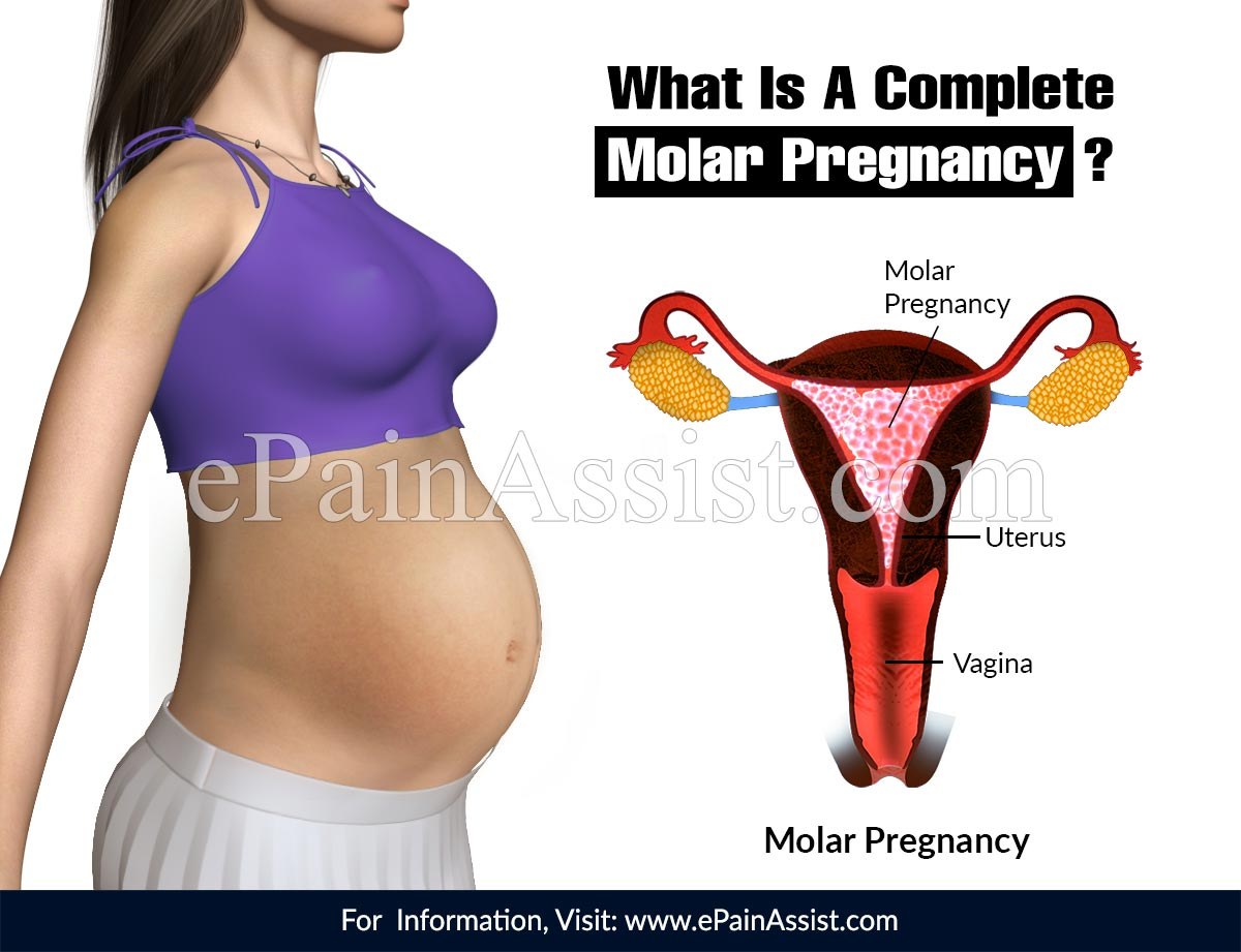 What Is A Complete Molar Pregnancy?
