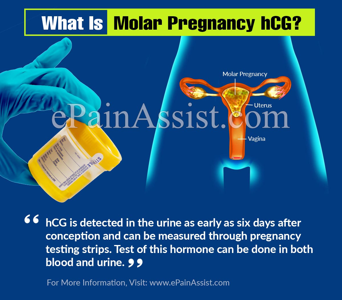What Is Molar Pregnancy hCG?