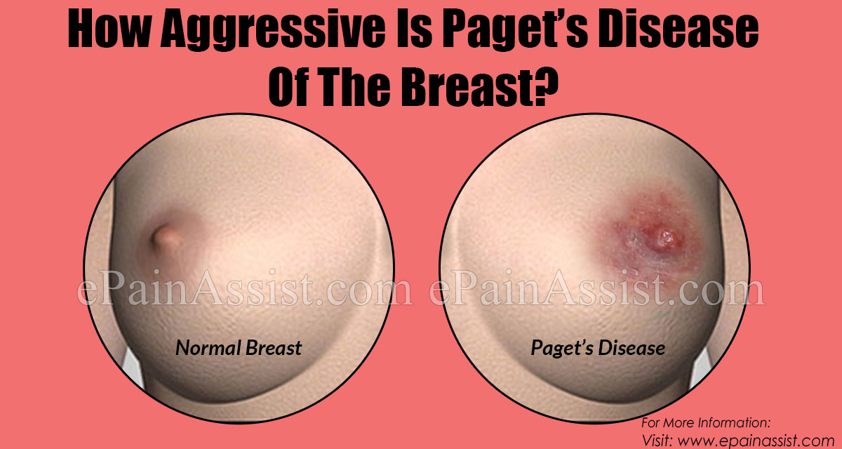 How Dangerous Is Paget's Disease Of The Breast?