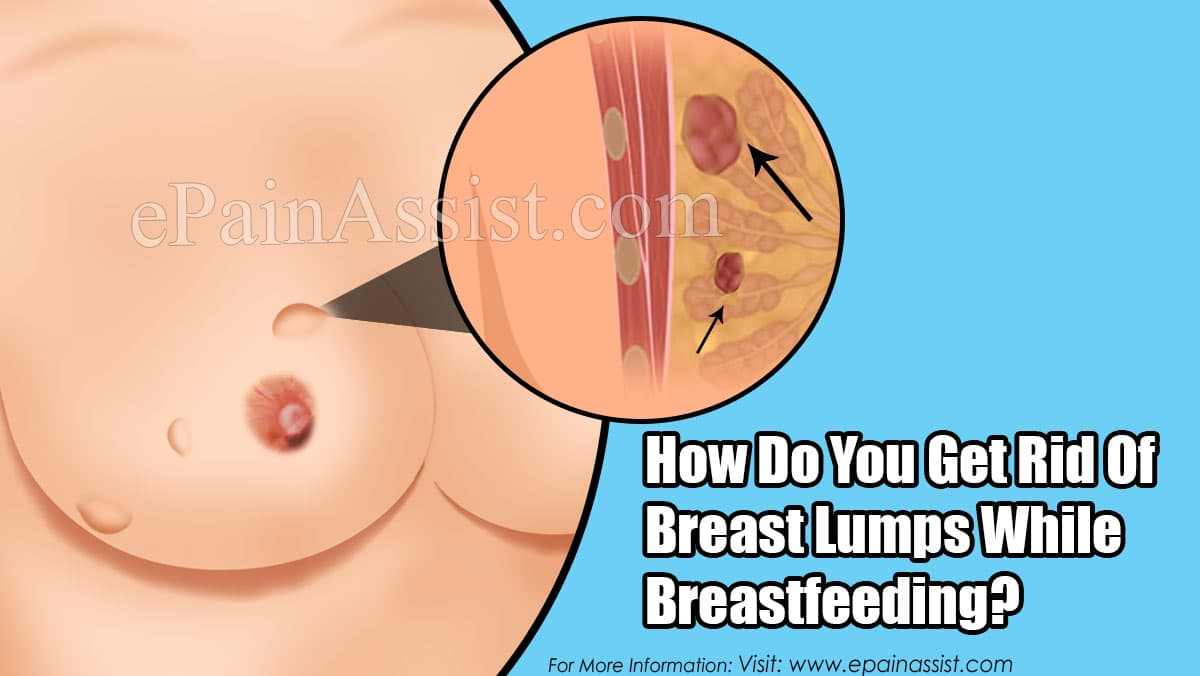 How Do You Get Rid Of Breast Lumps While Breastfeeding?