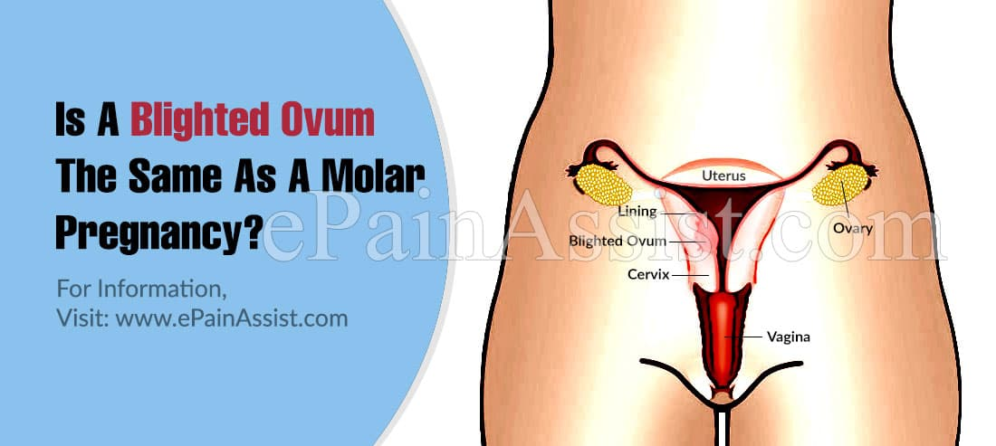 Is A Blighted Ovum The Same As A Molar Pregnancy?