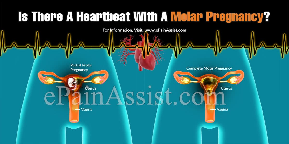 Is There A Heartbeat With A Molar Pregnancy?