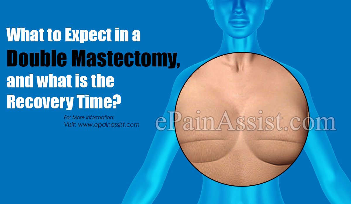 What to Expect in a Double Mastectomy, and what is the Recovery Time?