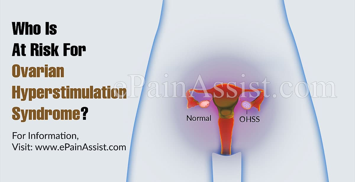Who Is At Risk For Ovarian Hyperstimulation Syndrome?
