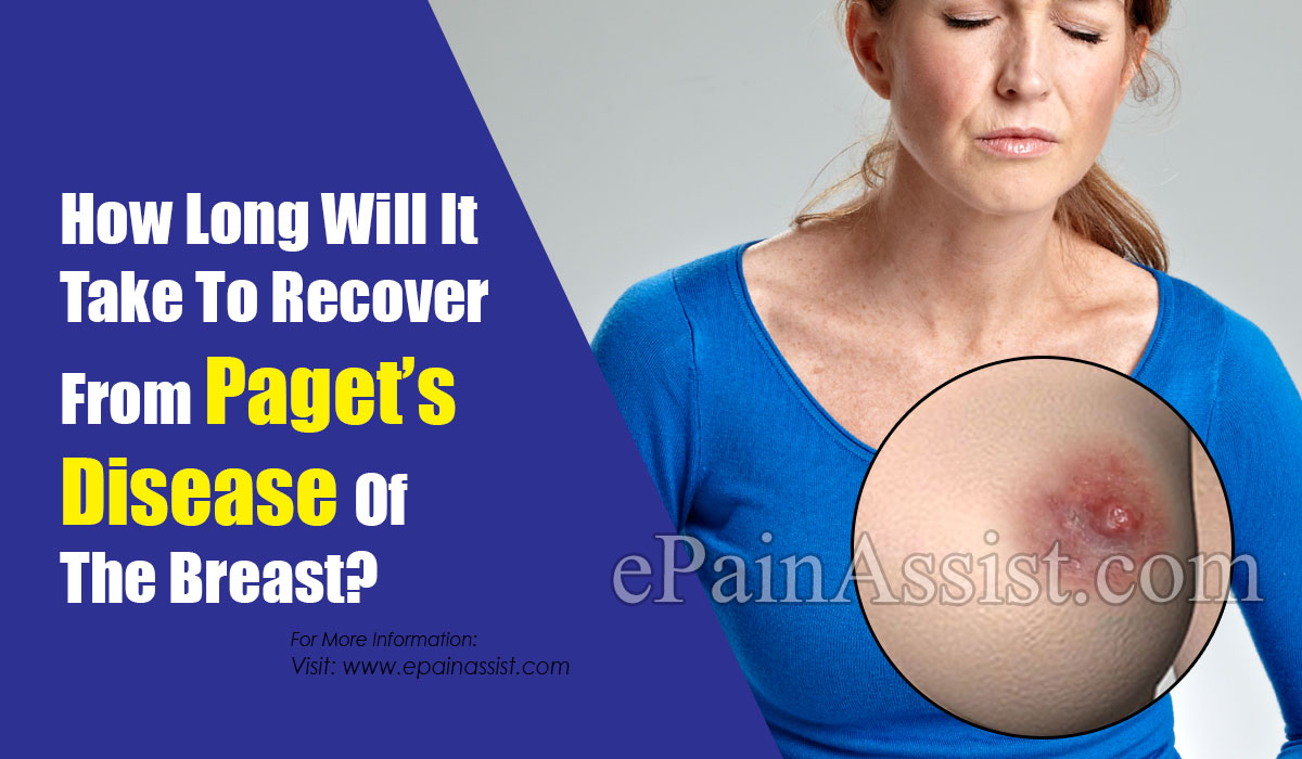 How Long Will It Take To Recover From Paget's Disease Of The Breast?