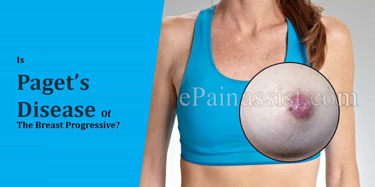 Is Paget's Disease Of The Breast A Progressive Disease