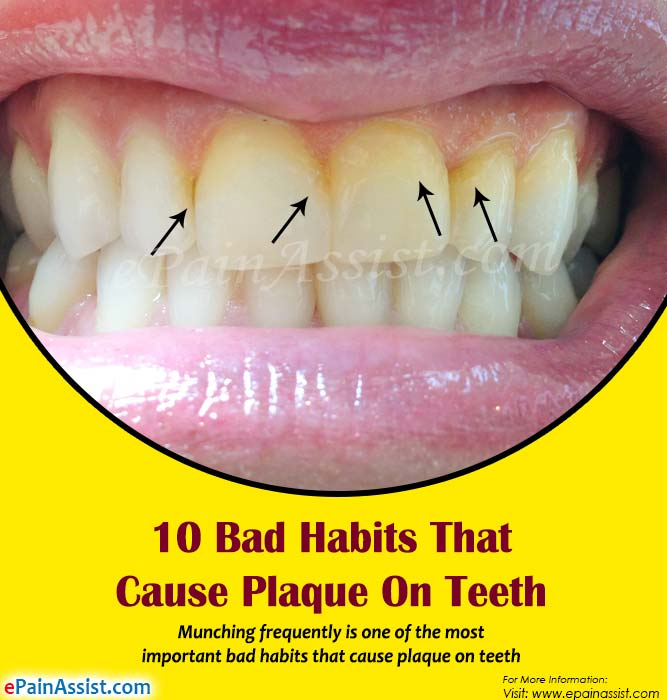 10 Bad Habits That Cause Plaque On Teeth