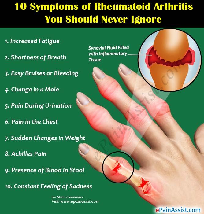 10 Symptoms of Rheumatoid Arthritis You Should Never Ignore