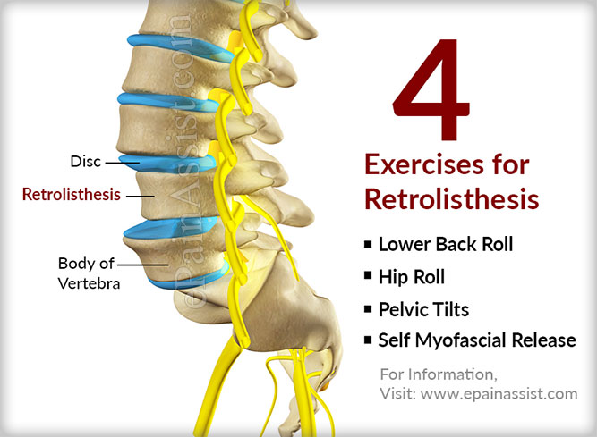 physical therapy for retrolisthesis The treatment for retrolisthesis depends upon the severity of injury there are surgical as well as nonsurgical protocols, but physical therapy treatment provides maximum relief.