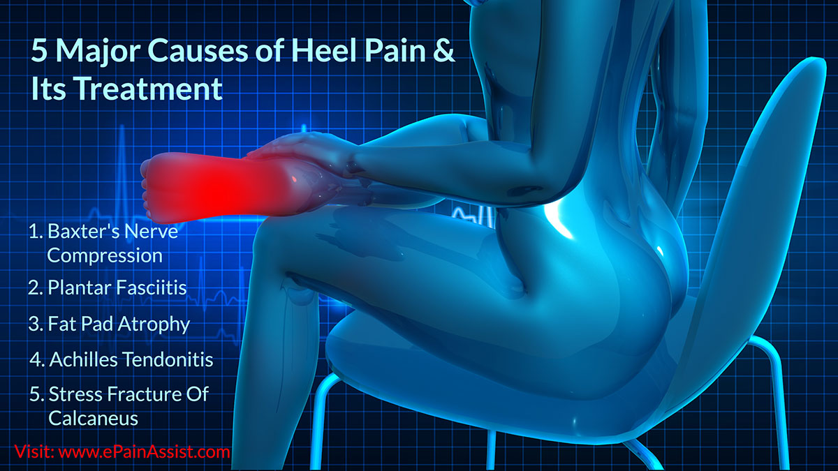 5 Major Causes of Heel Pain & Its Treatment