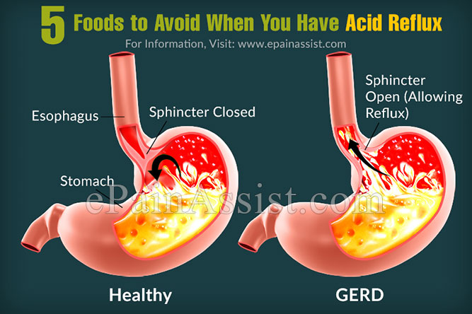 What Foods Can You Eat With Ulcers And Gerd