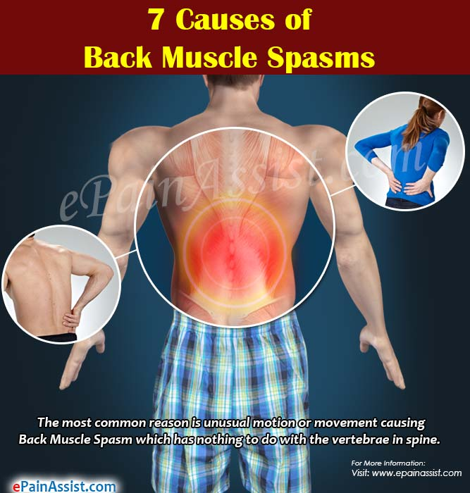 7 Causes of Back Muscle Spasms