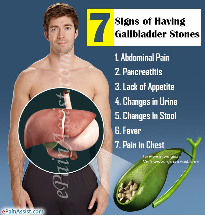 7 Signs of Having Gallbladder Stones