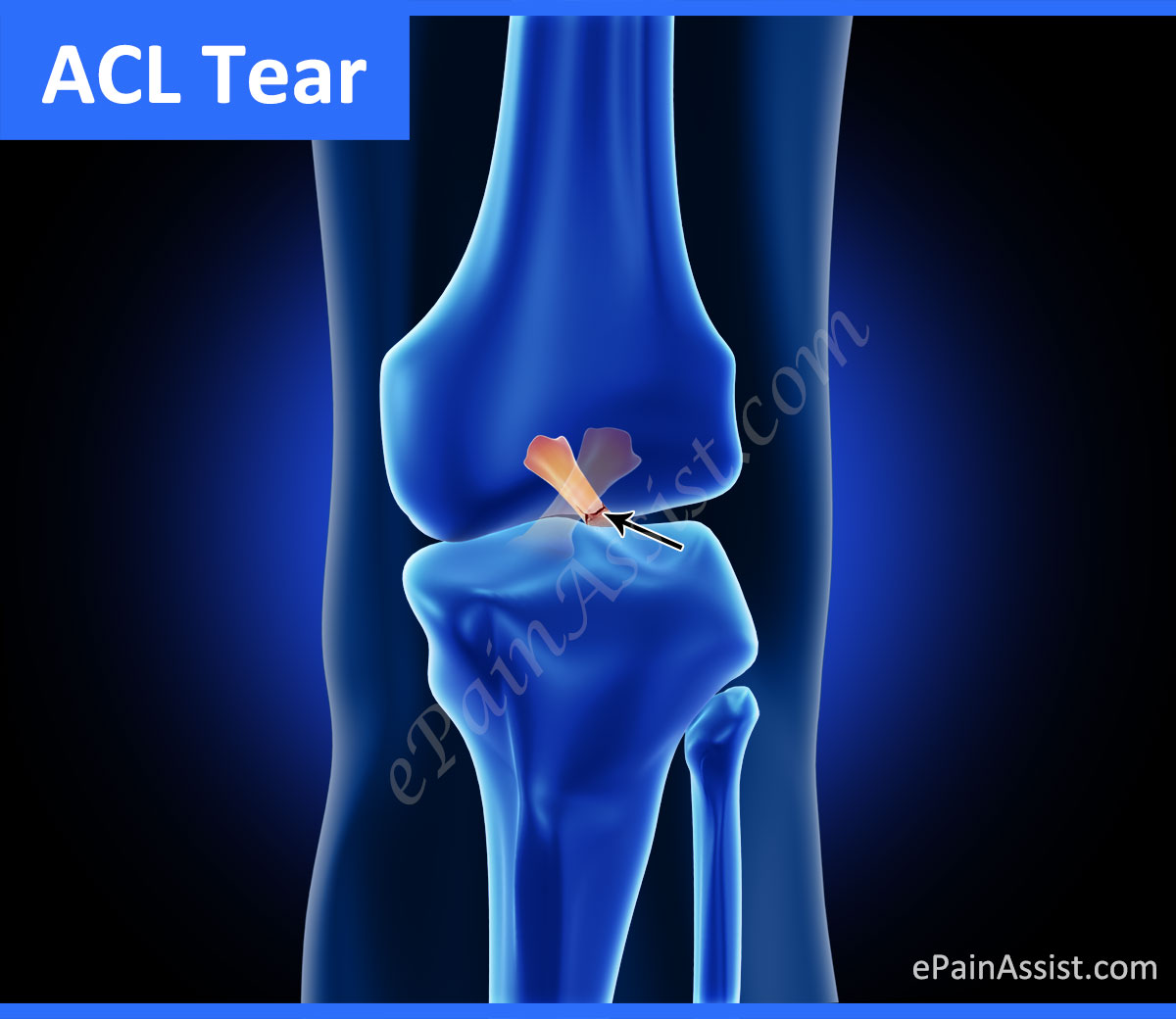 a look at the anterior cruciate ligament injuries in sports Background the anterior cruciate ligament (acl) originates from the tibial plateau just medial and anterior to the tibial eminence the acl tracts from the tibia superiorly, laterally, and posteriorly to its insertion on the posterior aspect of the medial wall of the lateral femoral condyle.