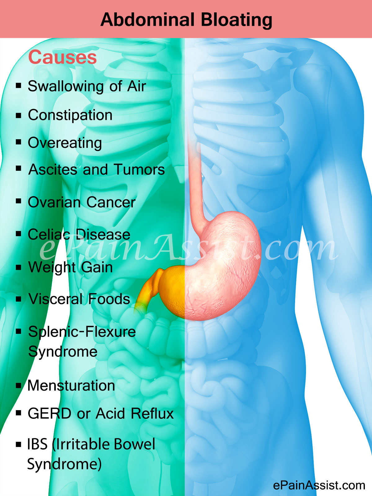 Causes of Abdominal Bloating - Infographic