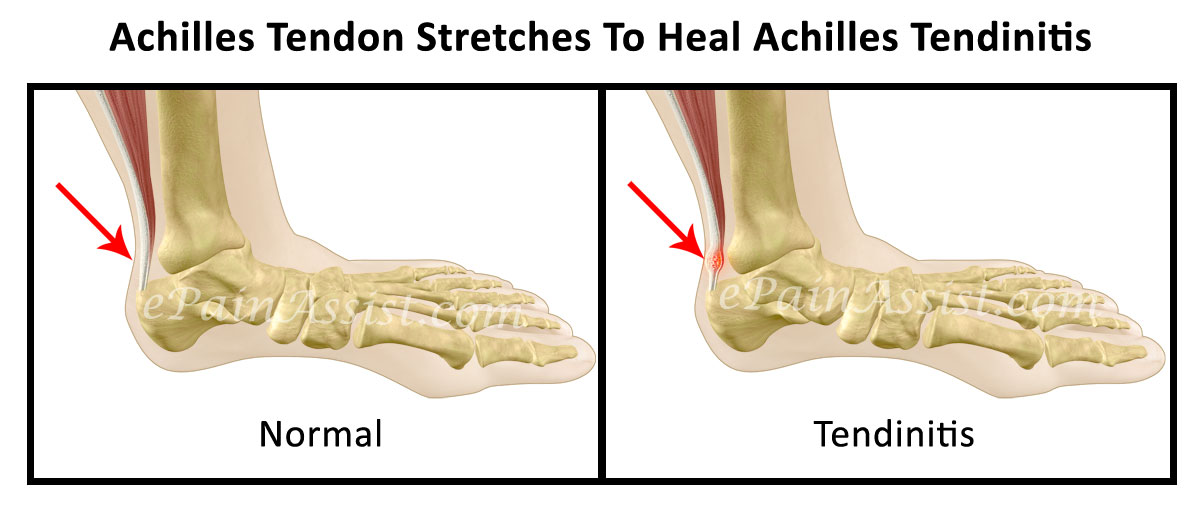 tendon stretches to heal achilles tendinitis, Human Body