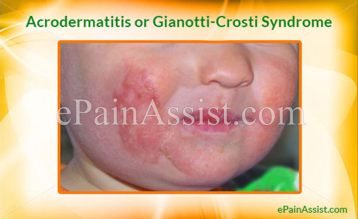 Acrodermatitis or Gianotti-Crosti Syndrome
