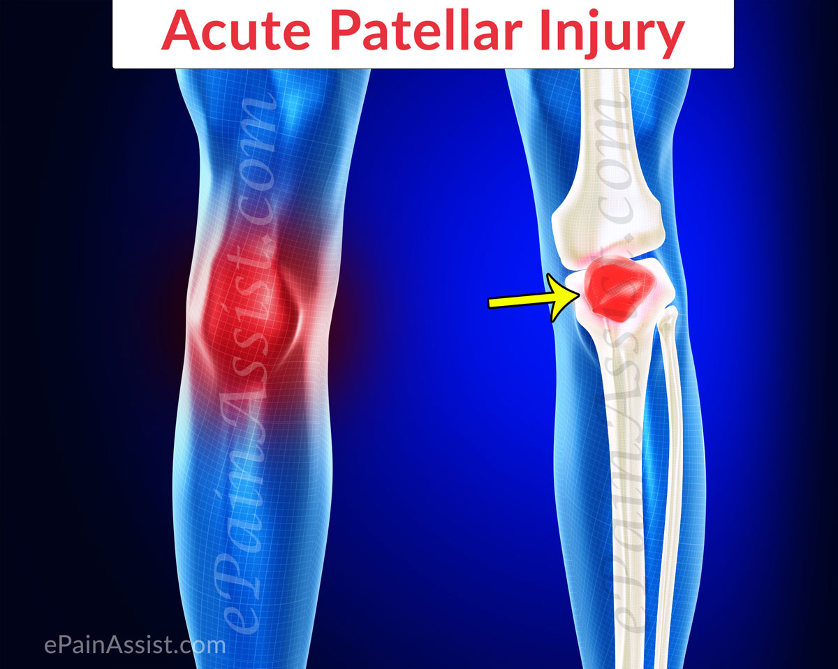 Acute Patellar Injury