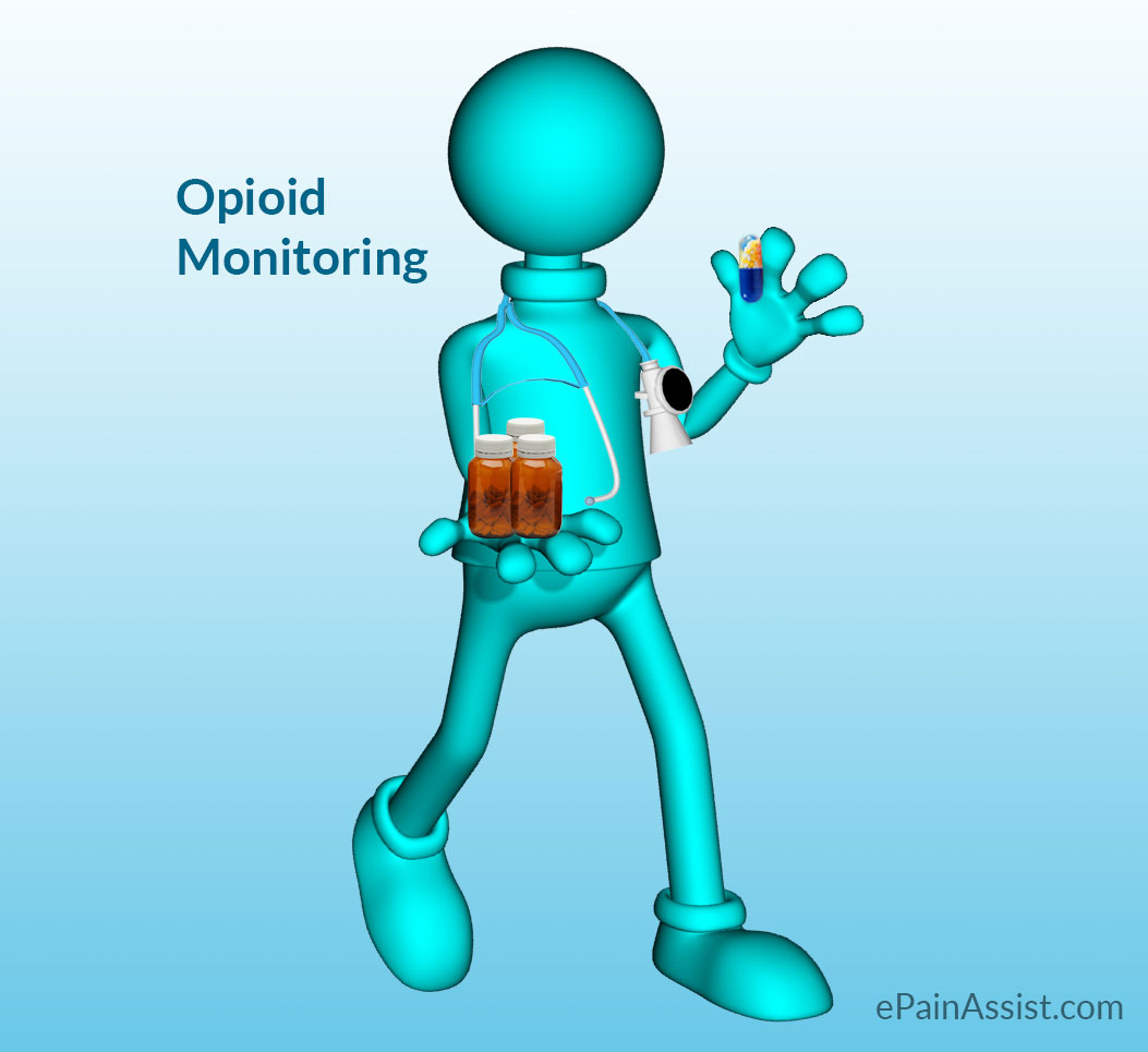 All about Opioid Monitoring