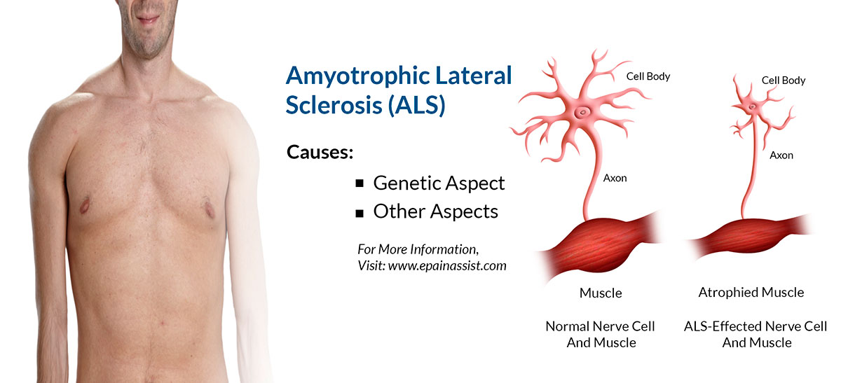 Amyotrophic Lateral Sclerosis (ALS) or Lou Gehrig's Disease|Symptoms