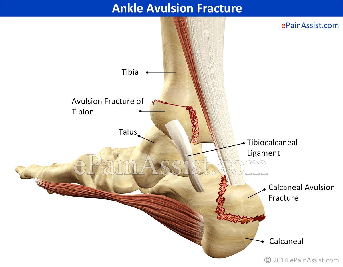 Ankle Avulsion Fracture|Symptoms|Causes|Treatment|Recovery Time ...