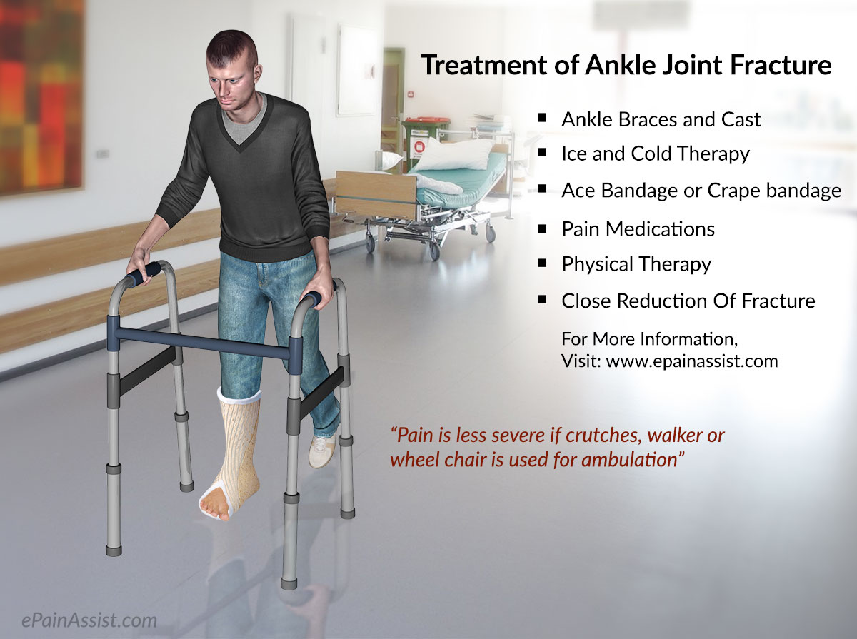 Treatment of Ankle Joint Fracture or Broken Ankle