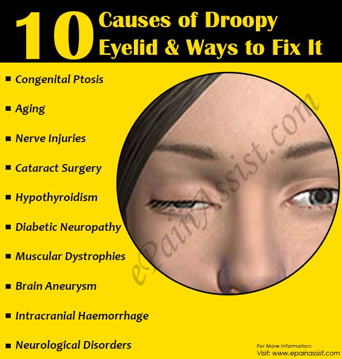10 Causes of Droopy Eyelids