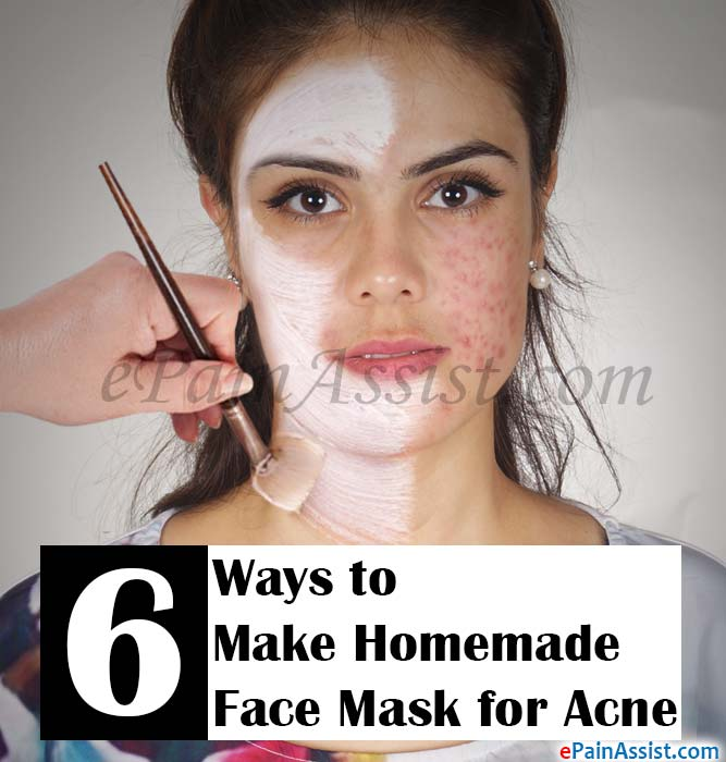 6 Ways to Make Homemade Face Mask for Acne