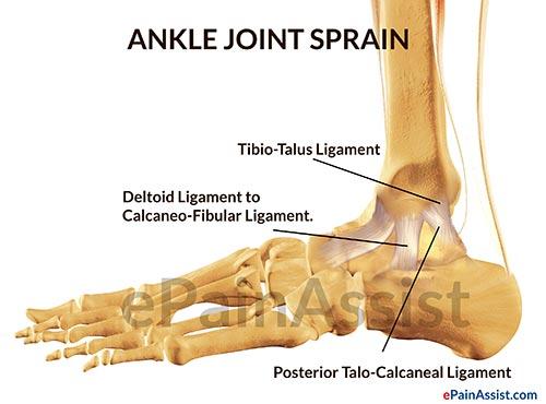 Ankle sprain anatomy