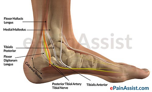 Causes Of Ankle Joint Tendonitis