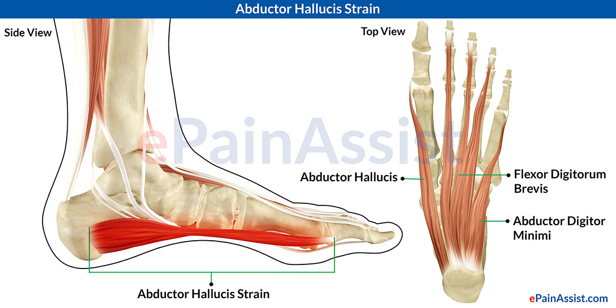 Abductor Hallucis Strain|Symptoms|Causes|Treatment-Cold Therapy ...