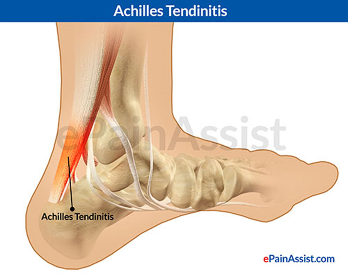 achilles tendinitis|causes|symptoms|treatment-ice, heel pads, Cephalic Vein