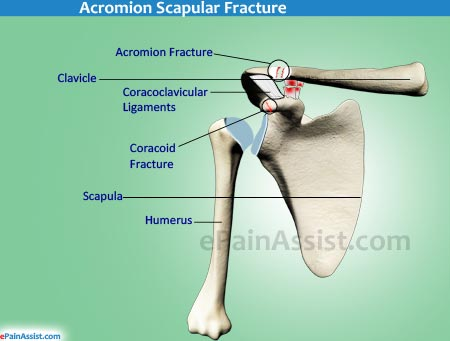 Acromion Fracture