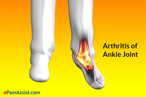 Ankle Joint Arthritis
