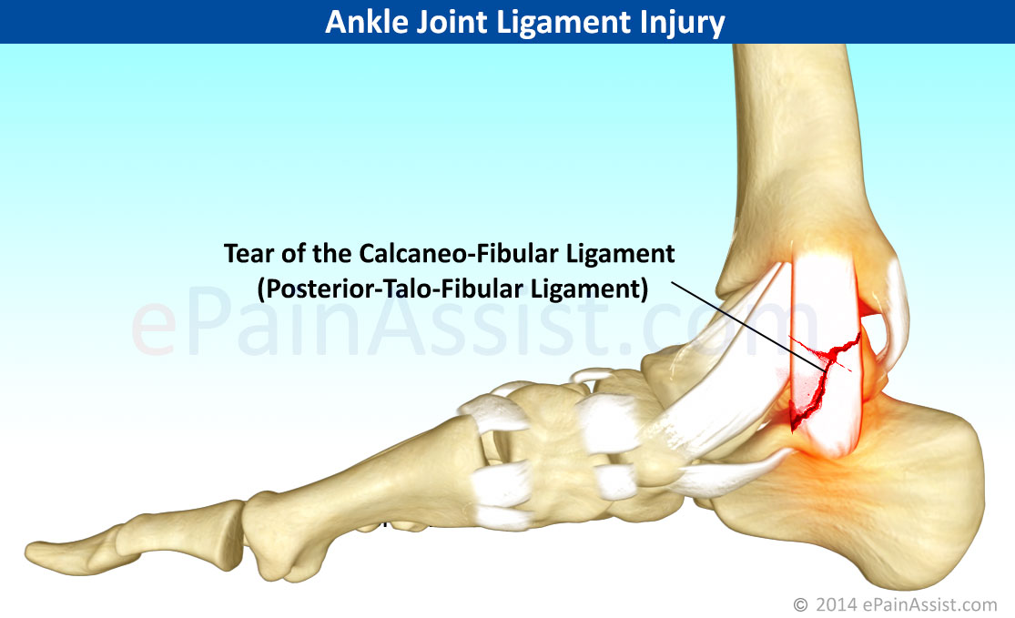 Ankle Joint Ligament Injurytreatmentrecovery Periodexercises