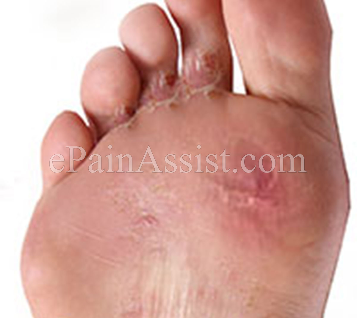 mild athletes foot treatment