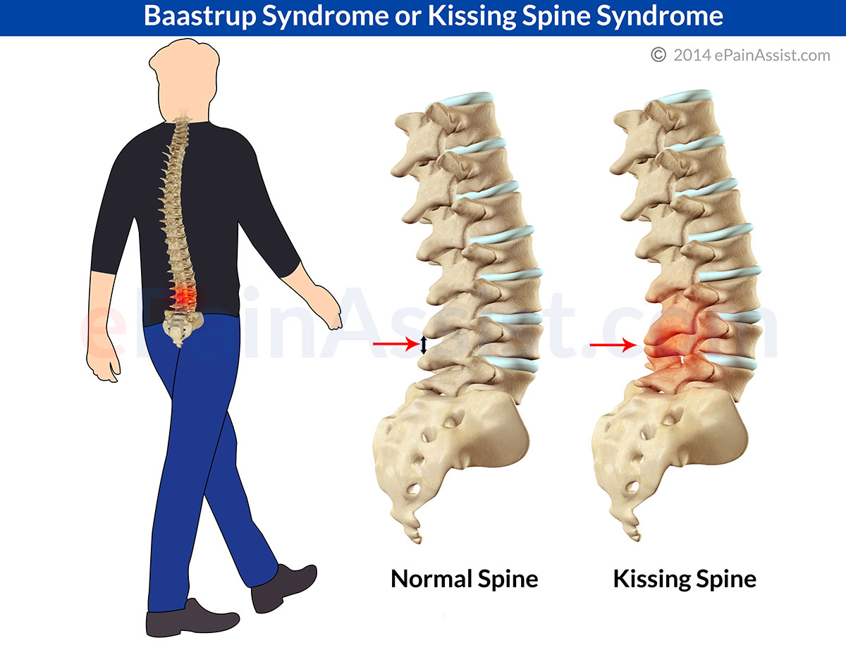 Baastrup Syndrome or Kissing Spine Syndrome in Humans: Causes ...