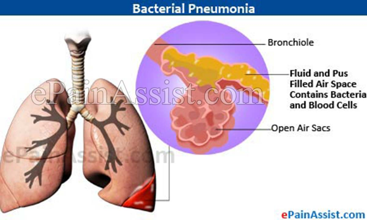 bacterial pneumonia: treatment, causes, symptoms, investigations, Human body