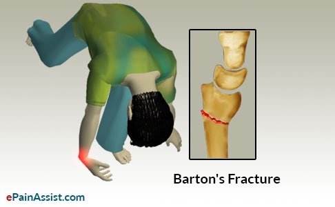Causes of Barton's Fracture