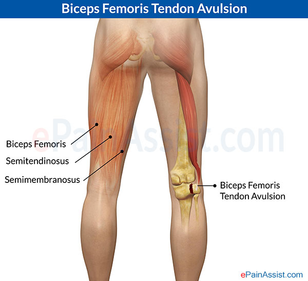 Biceps Femoris Tendon Avulsion
