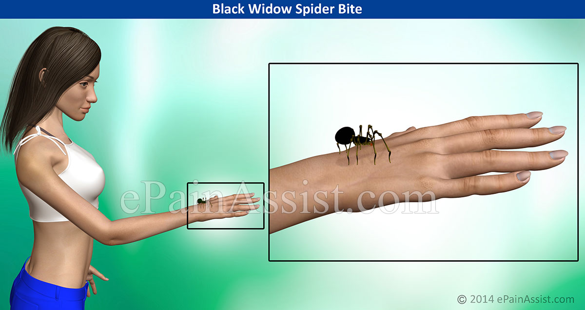 Black Widow Spider Bite