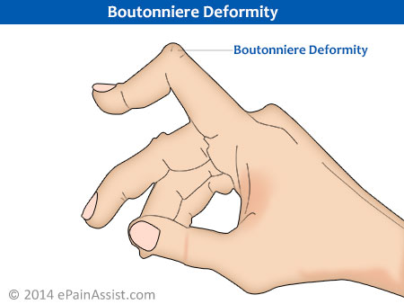 Boutonniere Deformity Signs for Rheumatoid Arthritis of Hands