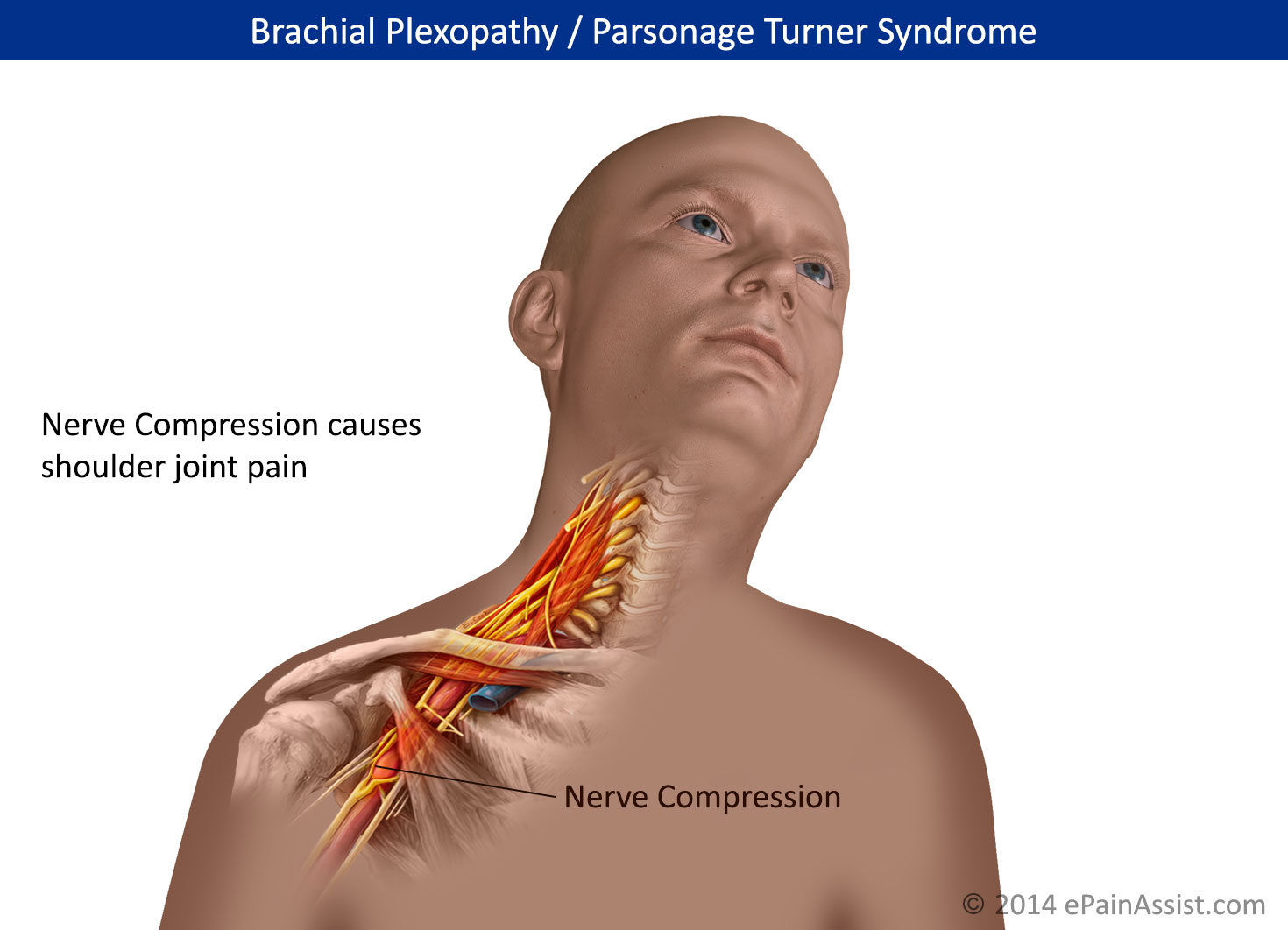 Parsonage Turner Syndrome or Brachial Plexopathy