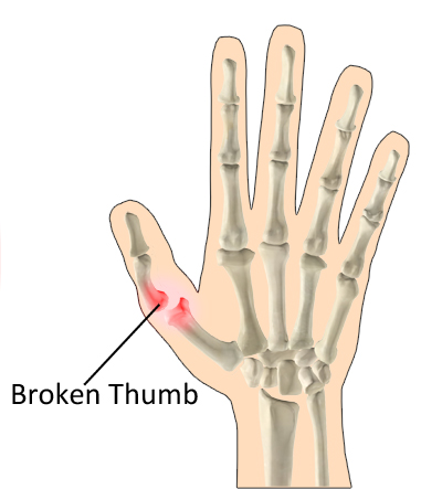 heal Broken thumb