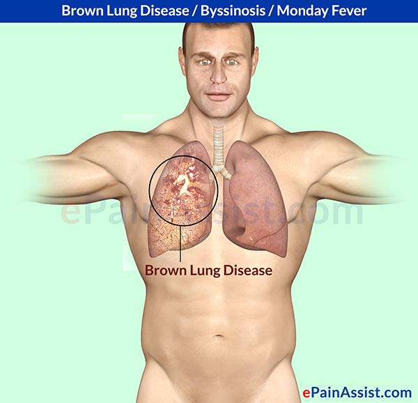 Byssinosis or Brown Lung Disease